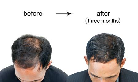 Foto de  before and after bald head of a man on white background. - Imagen libre de derechos