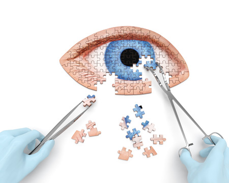 Eye operation (vision correction) puzzle concept: