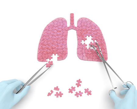 Photo pour Lungs operation puzzle concept: hands of surgeon with surgical instruments tools perform lungs surgery as a result of respiratory disease, pneumonia, tuberculosis, bronchitis, asthma, lung abscess - image libre de droit