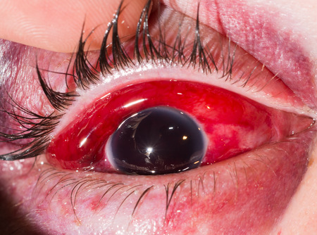 close up of the eight ball from blunt injury during eye examination.