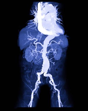 Photo pour CTA abdominal aorta or CT angiography 3D mip image  showing abdominal aortic aneurysm medical call name AAA - image libre de droit