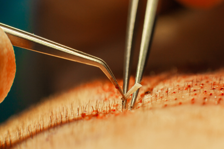 Photo for Macrophotography of a hair bulb transplanted into a hairless area. Baldness treatment. Hair transplant. Surgeons in the operating room carry out hair transplant surgery. Surgical technique that moves hair follicles from a part of the head. - Royalty Free Image