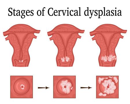 Illustration pour The three stages of cervical dysplasia - a potential premalignant condition. - image libre de droit