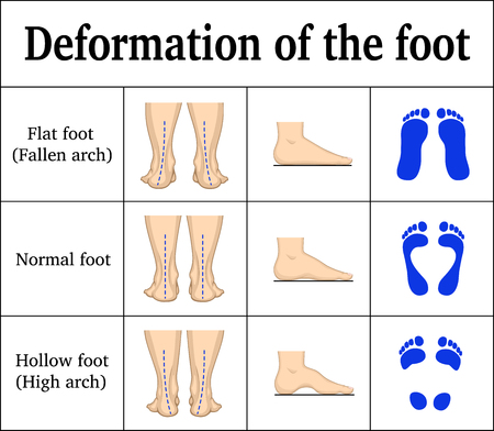 Illustration for Illustration of the deformation of the foot. - Royalty Free Image