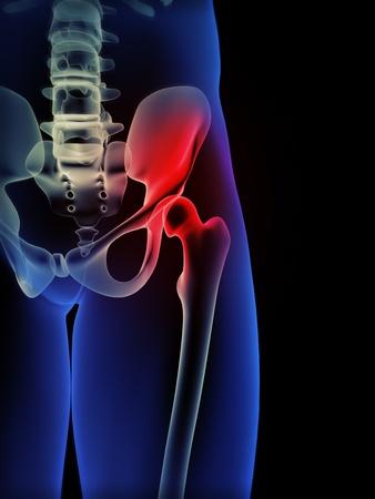 Human hip pain concept