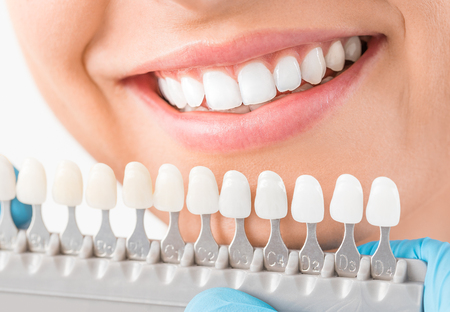 Photo pour Beautiful smile and white teeth of a young woman. Matching the shades of the implants or the process of teeth whitening. - image libre de droit
