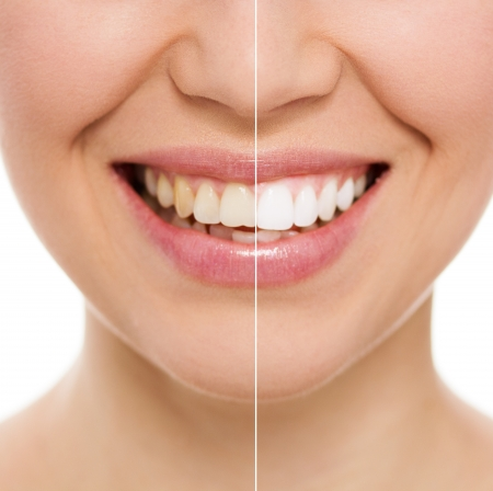 Before and after teeth bleaching or whitening treatment  Close-up of young Caucasian female s smile