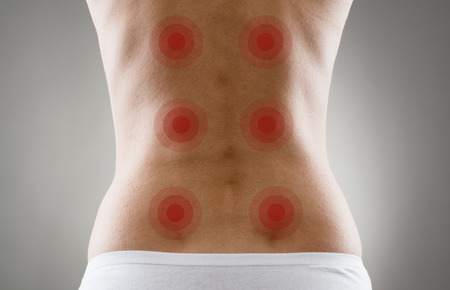 Close-up of female body over grey background. Acupressure shown with red spots on woman\'s back. Backache and treatment.