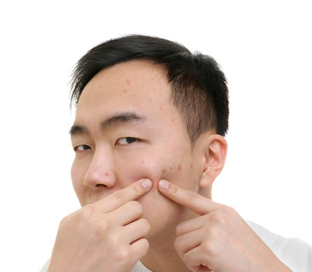 Photo pour Young Asian man popping pimples, on white background - image libre de droit