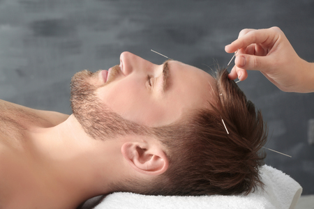 Photo pour Young man getting acupuncture treatment, closeup - image libre de droit