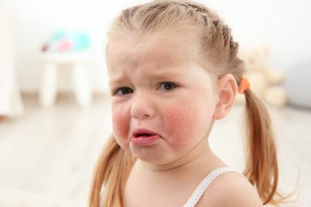 Foto de Portrait of little crying girl with diathesis symptoms in light room - Imagen libre de derechos