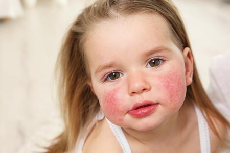 Foto de Portrait of little girl with diathesis symptoms on cheeks in light room - Imagen libre de derechos