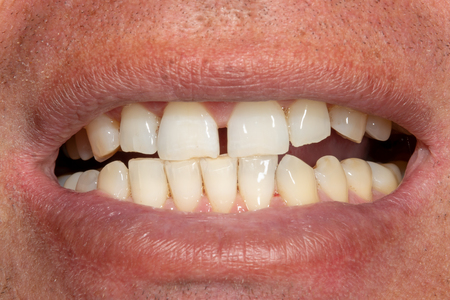 Photo pour the teeth close-up after hygiene and bleaching. Man's face and smile - image libre de droit