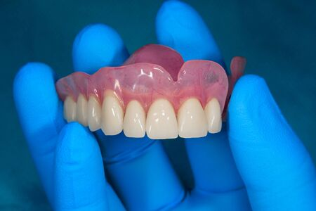 Foto de Close-up human denture of the upper jaw on a blue background in the hand of a dentist wearing a medical glove - Imagen libre de derechos