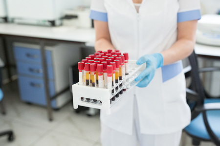 Medical and science background. Hands of laboratory assistants holding rack of sample tubes for blood test analysis