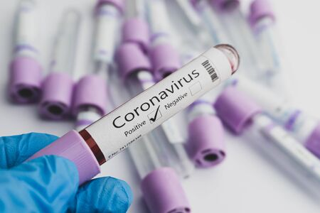 Photo for Blood test samples for presence of coronavirus (COVID-19) tube containing a blood sample that has tested positive for coronavirus. Covid-19 concept. - Royalty Free Image