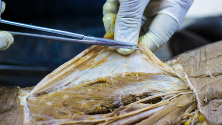 Photo for Anatomy dissection of a cadaver showing adductor canal using scalpel scissors and forceps cutting skin flap revealing important structures arteries veins nerves - Royalty Free Image