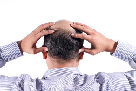 Foto für bald businessman with his head on scalp view from behind with white background - Lizenzfreies Bild