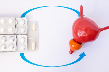Stack of blisters with tablets or pill indicated by arrows in anatomic model of prostate gland and bladder. Concept photo of treatment, substitution therapy of prostate diseases and urological illness