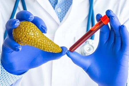 Foto de Laboratory medical diagnostics, tests and analysis for pancreas gland concept photo. Doctor or laboratory technician holds in one hand laboratory test tube with blood, in other - figure of pancreas - Imagen libre de derechos