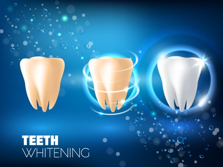 Illustration for Teeth whitening concept vector realistic illustration. Tooth before whitening, during and after whitening procedure on blue sparkling background. Dental health and teeth restoration ad design template - Royalty Free Image