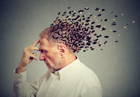 Foto de Memory loss due to dementia. Senior man losing parts of head  as symbol of decreased mind function. - Imagen libre de derechos