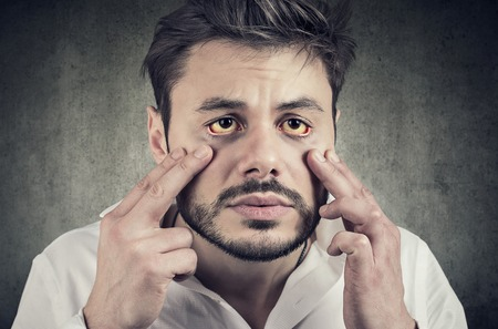 Photo pour Hepatic disease. Sick man looking in a mirror has yellowish eyes as sign of possible liver infection or other disease.  - image libre de droit