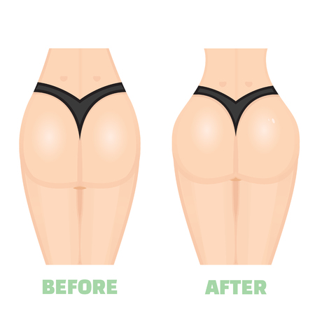 Buttocks, breech, butt, rear, nates augmentation consept. Before an After. Increase buttocks