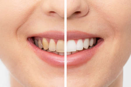 Photo pour Teeth before and after whitening. Dental care concept - image libre de droit