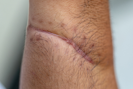 Photo pour A scar is an area of fibrous tissue that replaces normal skin after an injury on skin. - image libre de droit