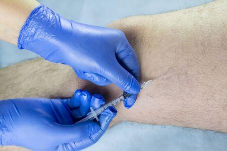 Foto de doctor examines a man s leg. there is varicose veins. - Imagen libre de derechos