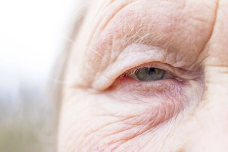 Photo pour Close-up. Woman aged. Eye in the center of the frame. The pupil has soft focus, the concept of poor eyesight, everything is blurry. - image libre de droit