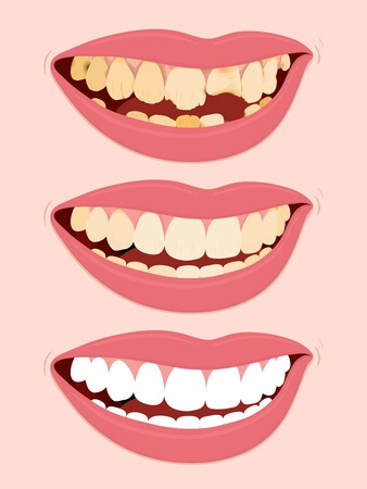 Progressive Stages Of Tooth Decay, illustration of open female mouth showing three steps to rotten teeth