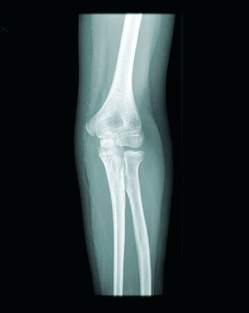 x-ray of a human ellbow, open epiphysis, black background