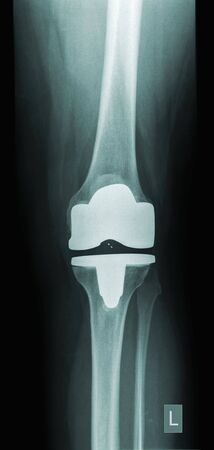 x-ray of a human knee with prothesis