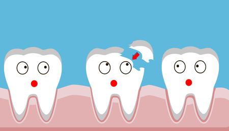 Ilustración de tooth fracture, filling, teeth, trauma, vector illustration. - Imagen libre de derechos