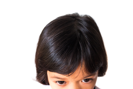 closeup asian girl head scratches caused by diseases of the scalp of children. it is lice and fungus on the scalp. cause itching and dirt. Shampoo product and medicine concept.