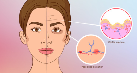 Illustration pour Premature wrinkles. Cosmetology. Aging of the skin, bruises under the eyes - image libre de droit