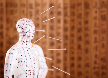 Photo pour Eastern or Asian acupuncture Medical Treatment.Shallow Dof. - image libre de droit
