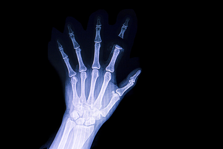 Photo pour A hand x ray film of a patient with traumatic amputation of his index finger. - image libre de droit