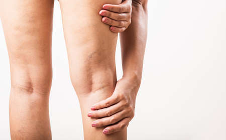 Photo pour Closeup young Asian woman painful varicose and spider veins on leg, studio shot isolated on white background, Healthcare medical and hygiene skin body varicose veins problems care concept - image libre de droit
