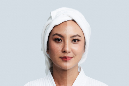 Photo pour Comparison Portrait of Beautiful Asian woman. Dark spots and new skin, Before - After skin care and clean concept, Beauty treatment process of aging for rejuvenation. - image libre de droit