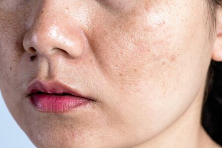 Photo pour Woman with problematic skin and acne scars. Problem skincare and health concept. Wrinkles Dark spots freckles dry skin and pigmentation on face asian woman. - image libre de droit