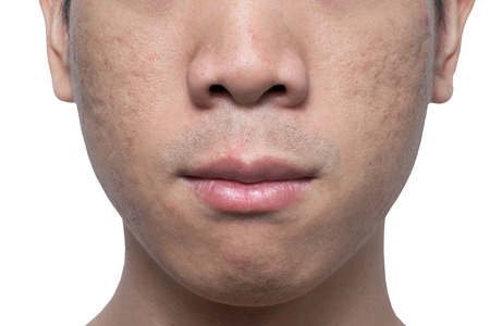 Photo for Close-up acne and scars on asian man face, isolated white background - Royalty Free Image