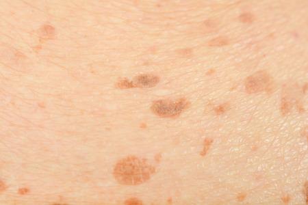 Photo pour freckles on the skin - image libre de droit