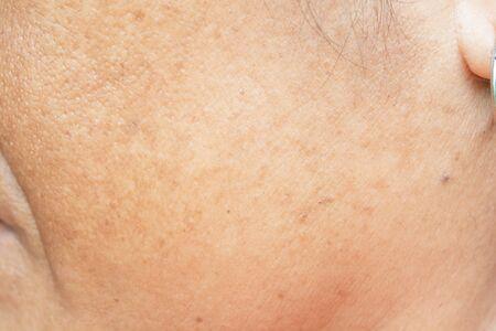 Photo pour freckles on the face. in old women - image libre de droit
