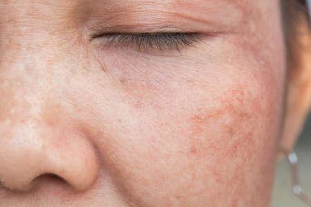 Photo pour freckles on the face - image libre de droit