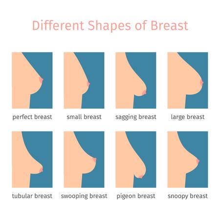 Illustration pour Breast shapes icons in flat style. illustration - image libre de droit