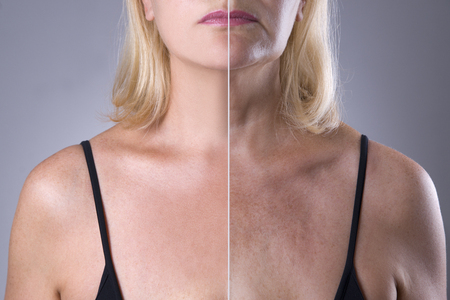 Photo pour Rejuvenation woman's skin, before after anti aging concept, wrinkle treatment, facelift and plastic surgery, half of body on gray background - image libre de droit