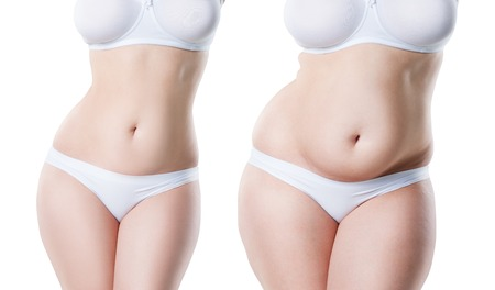 Foto de Woman's body before and after weight loss isolated on white background, plastic surgery concept - Imagen libre de derechos